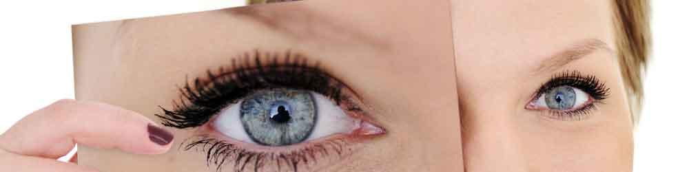Amblyopia (Lazy Eye)